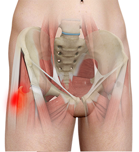 Hip Tendonitis