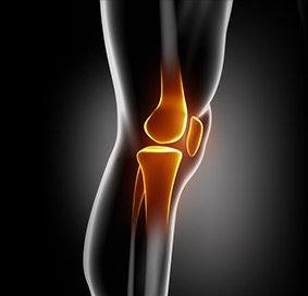 Multiligament Knee Injuries