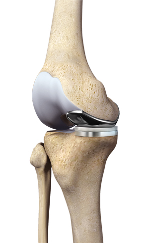 Partial Medial Knee Replacement