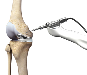 Mako Robotic Assisted Knee Replacment
