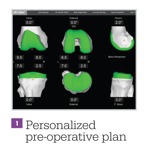 Personalized Operative Plan
